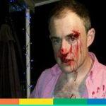 Ha una camicia rosa, pensano sia omosessuale e lo aggrediscono